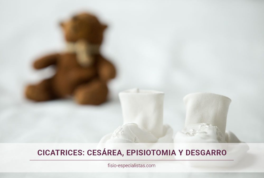 cicatrices-del-parto-cesarea-episotomia-desgarro