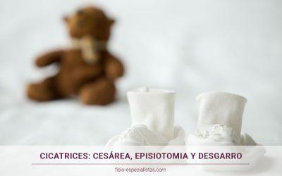 Cicatrices del parto: cesárea, episotomía y desgarro